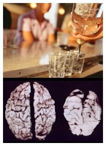 La medicina si è rivolta a dipendenza alcolica