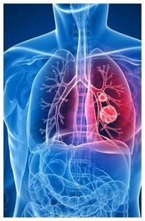 immunoterapia carcinoma prostatico approvazione aifa