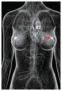 Tumore al seno: sintomi, prevenzione - Farmaco e Cura