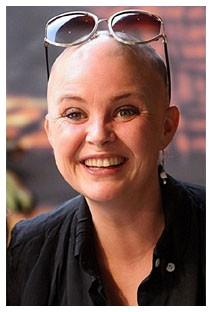 Chemioterapia caduta capelli