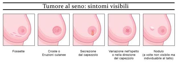 Risultati immagini per sintomi cancro